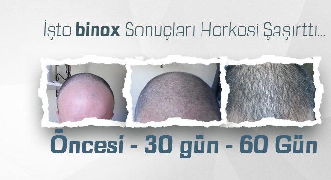 Binox Saç Çıkaran Losyon Gerçek mi